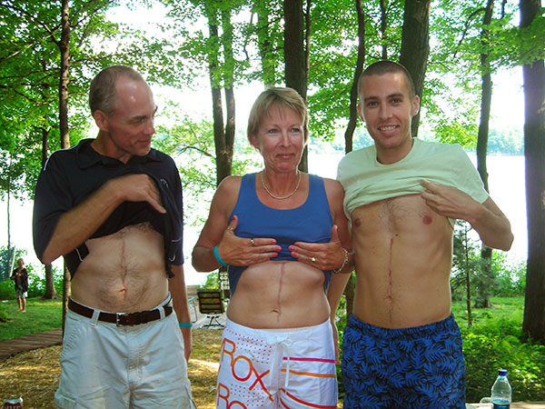 Johanna's uncle Ken, aunt Karen, and brother,  Brian show off their surgical scars